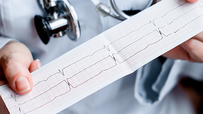 Кардиограмма сердца ЭКГ
