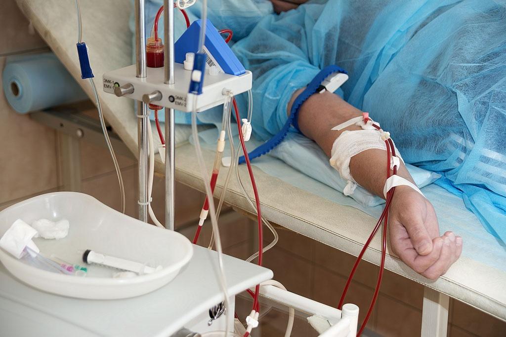 Методы очищения крови