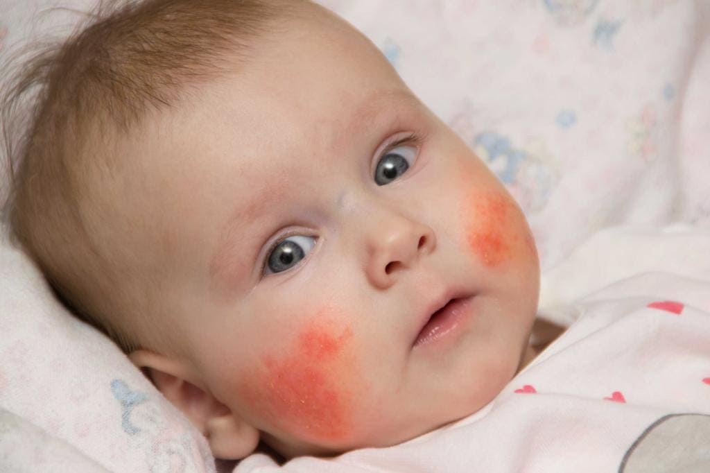 Атопический дерматит у детей.