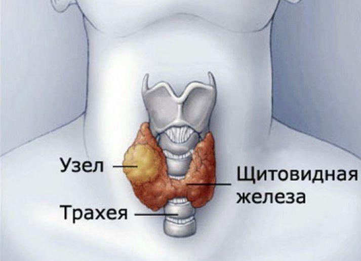 Узел на щитовидной железе-строение
