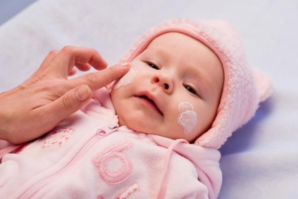 атопический дерматит у младенцев - лечение
