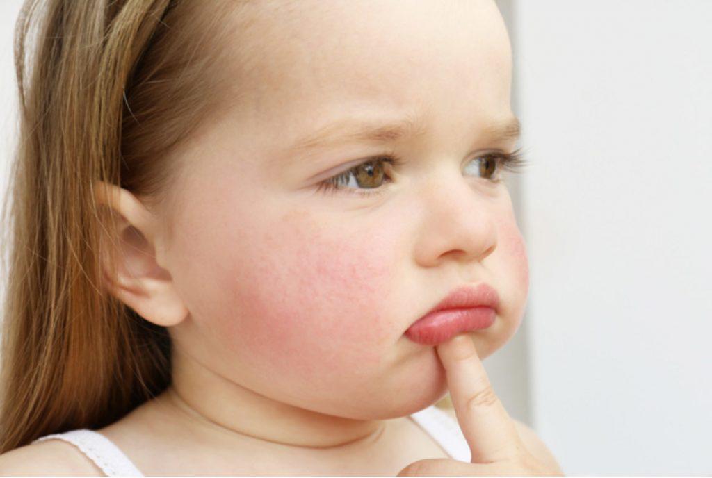 атопический дерматит у ребенка