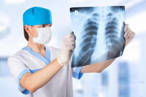 врач-пульманолог смотрит на снимок легких