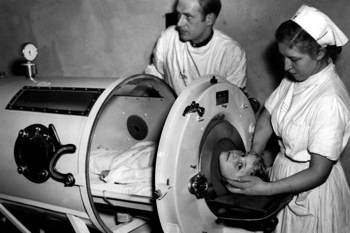 Искусственная вентиляция легких - «железное легкое» 1952 год
