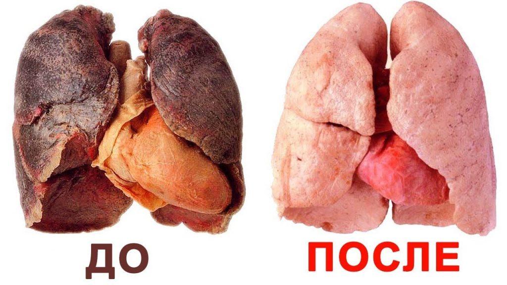 легкие до и после курения