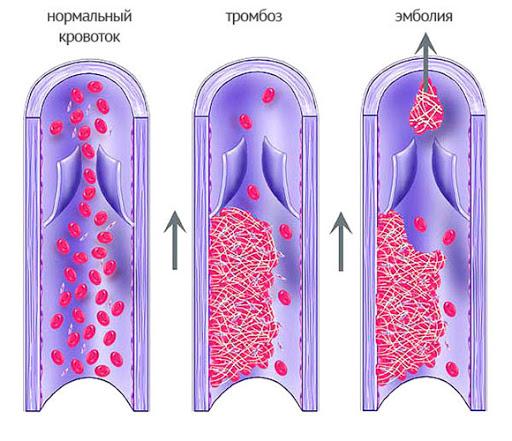 аспирин и тромбозы
