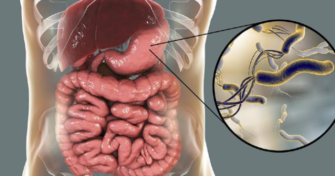 лечение хеликобактерной инфекции