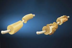 Вторично-прогрессирующий рассеянный склероз