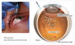 Инъекции в глаз