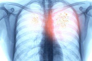 туберкулез и ковид