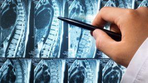 Снимок МРТ. Как узнать причины болей в спине