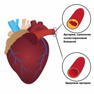 холестерин ЛПНП приводит к появлению атеросклеротических бляшек
