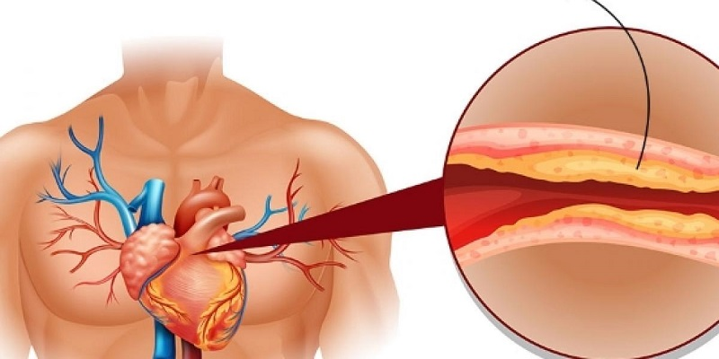 Повышенный холестерин. Лечение