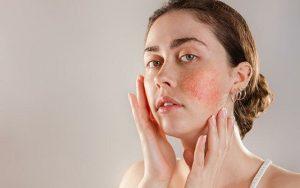гиперчувствительная кожа