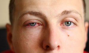 слезы аллергия