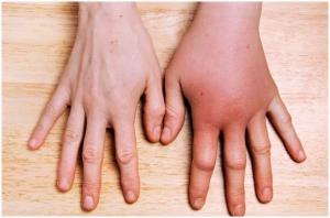 рука опухла от укуса